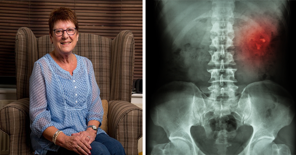 When Her Doctors Diagnose Her With Kidney Cancer, She Immediately Fears For The Worst. But Then She Hears How They Plan On Treating Her.