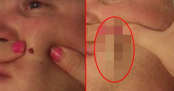 Wife Pops Husband's Pimple That Has Been Growing For Four Years. She's Not Ready For What's About To Come Out.