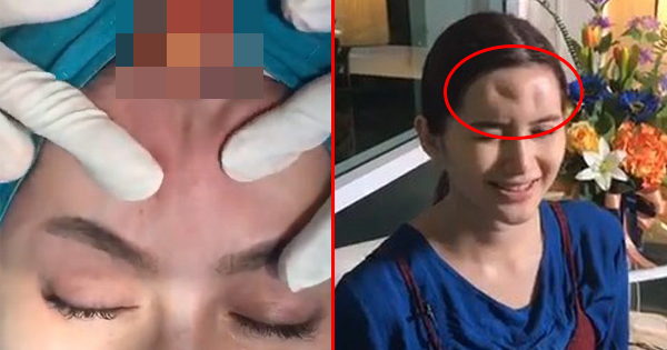 She Injects Filler Into Her Forehead To Remove Wrinkles. What She Gets Is A Big Painful Lump Instead.