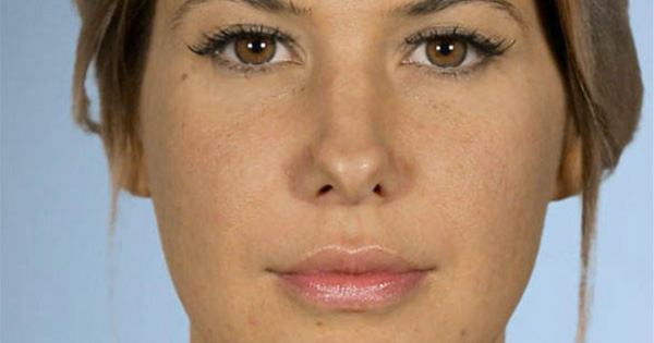 'Botched' Patient Reveals Terrifying News About Her Previous Nose Job